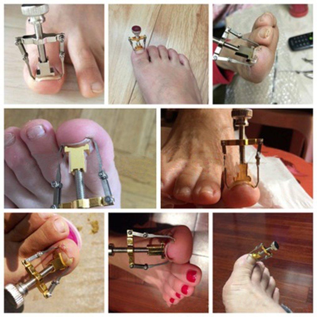 Electroplating Ingrown Toe Nail Correction Tool Toe Paronychia Nail Brace Tool