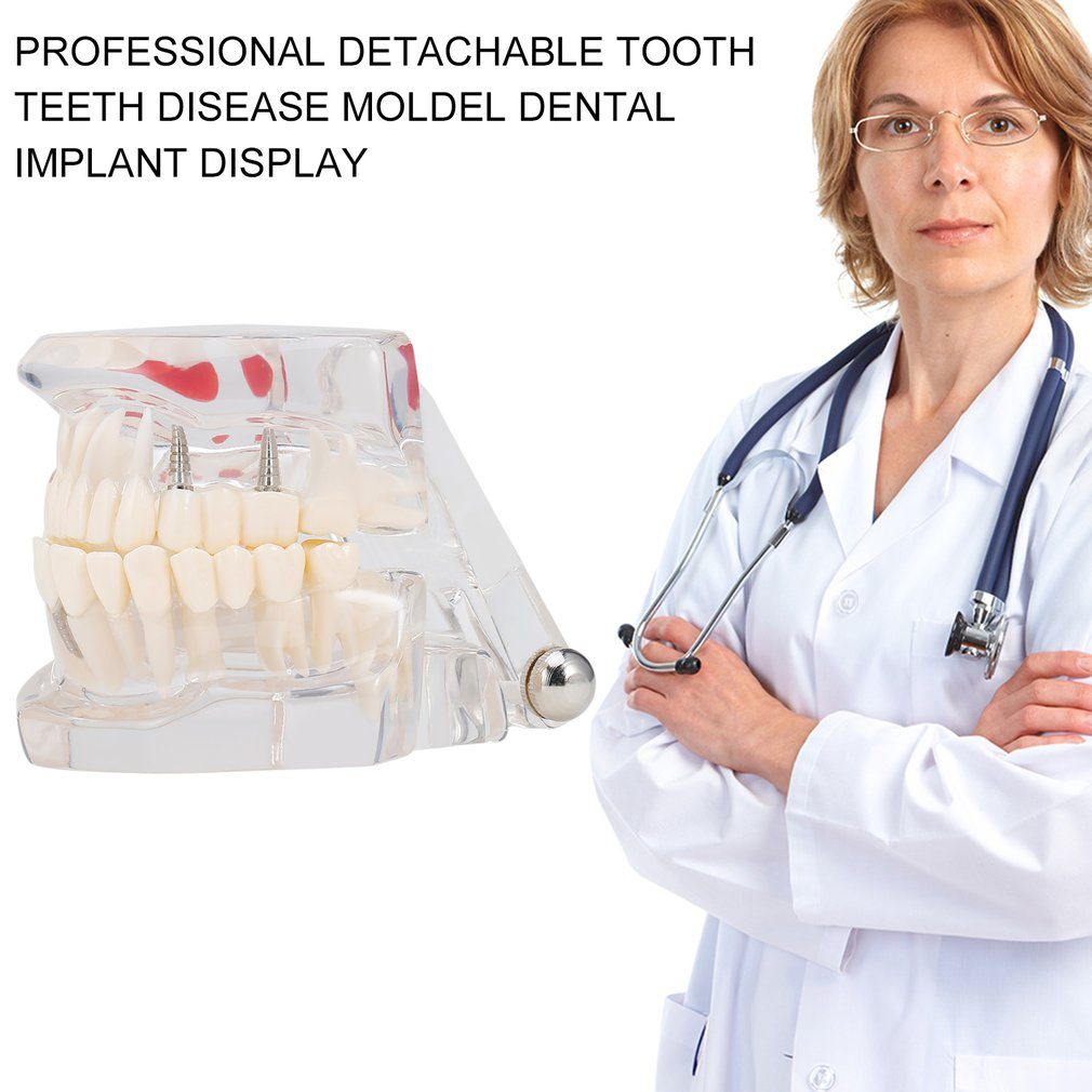 Professional Detachable Tooth Teeth Disease Moldel Dental Implant Display